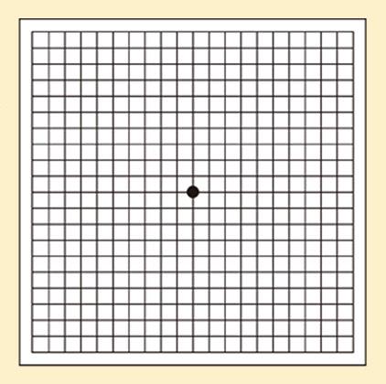 格子状の線の中心に黒い点が書かれた画像